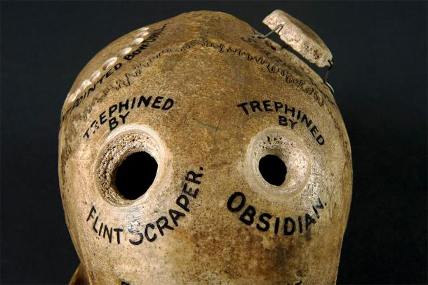 Human skull illustrating different methods of trephination. ((Wellcome Images / CC BY 4.0 )