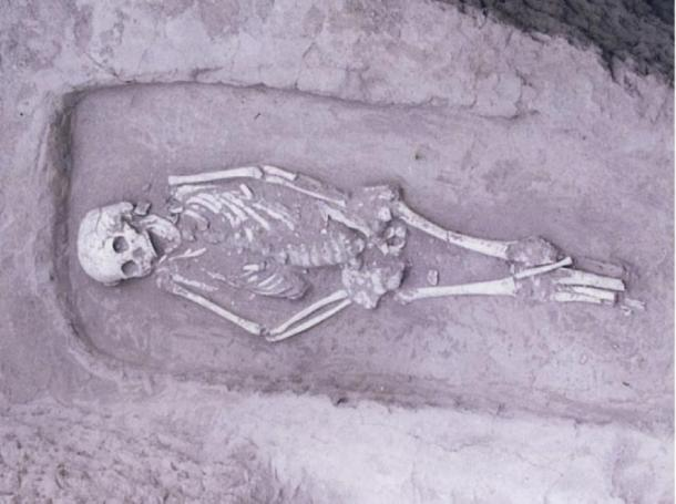 The individual found to have dwarfism during the excavation at Guanjia. (CC BY 4.0 Science Direct)