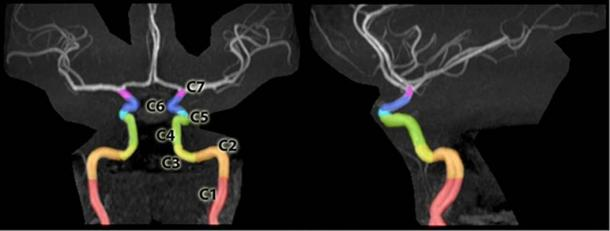 Segments of the internal carotid artery at the base of the skull that allow arteries to pass to the brain, delineated on an MRA of the head.