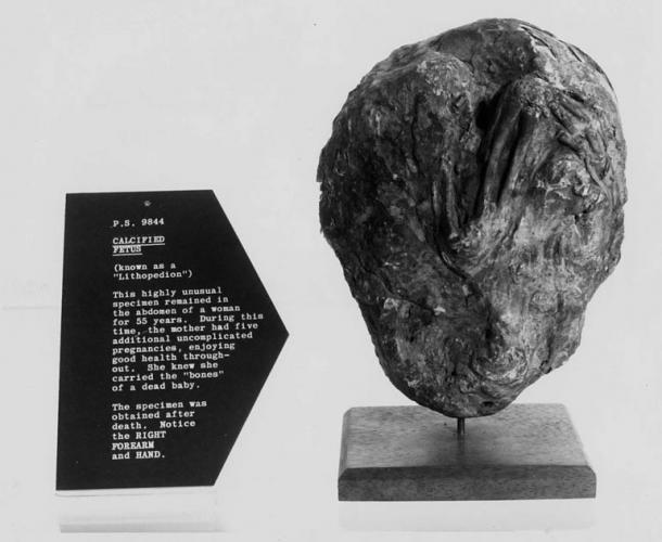 A lithopedion. This highly unusual specimen remained in the abdomen of a woman for 55 years. During this time the mother had five additional uncomplicated pregnancies.