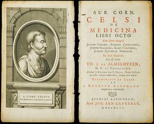 A medical text by Aurelius Cornelius Celsus.
