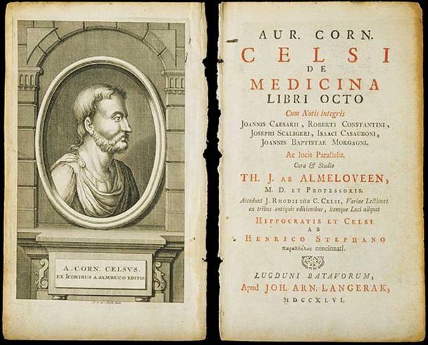 A medical text by Aurelius Cornelius Celsus.