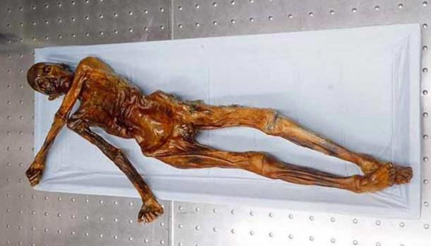 The mummy of the Iceman.
