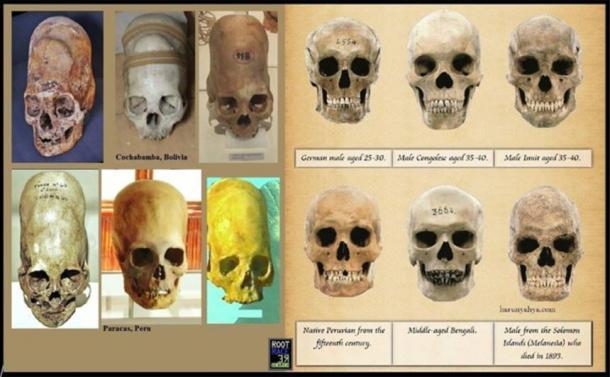 Paracas skulls (left) and modern human skulls (right)