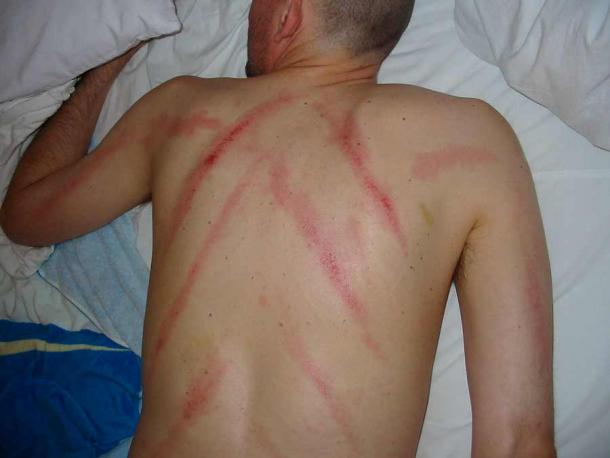A patient after a Gua Sha back treatment. (Jugana / CC BY-SA 3.0)