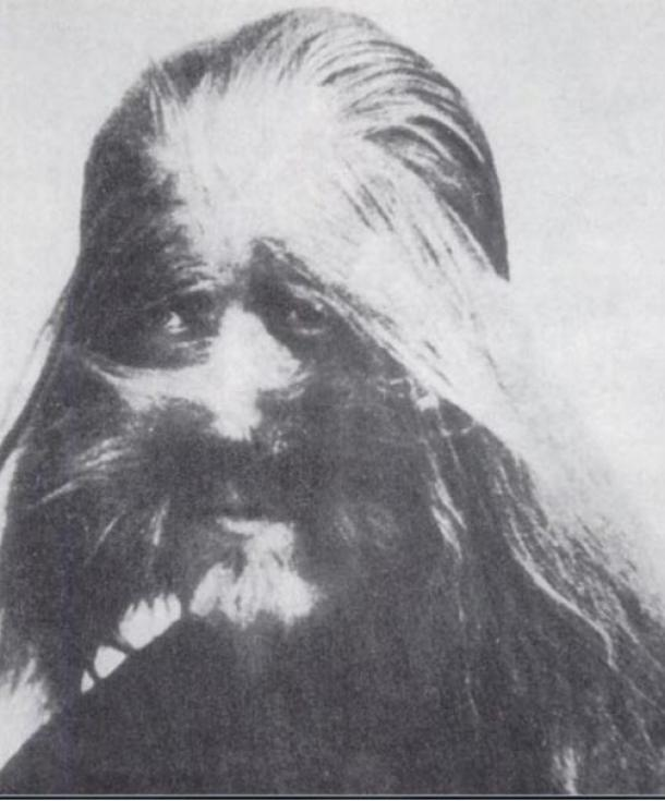 "A photo of Li Baoshu who was born with the condition hypertrichosis, also known as ""werewolf syndrome,"" that causes excessive hair growth. The picture was on display at Beijing's zoo in the 1920s."