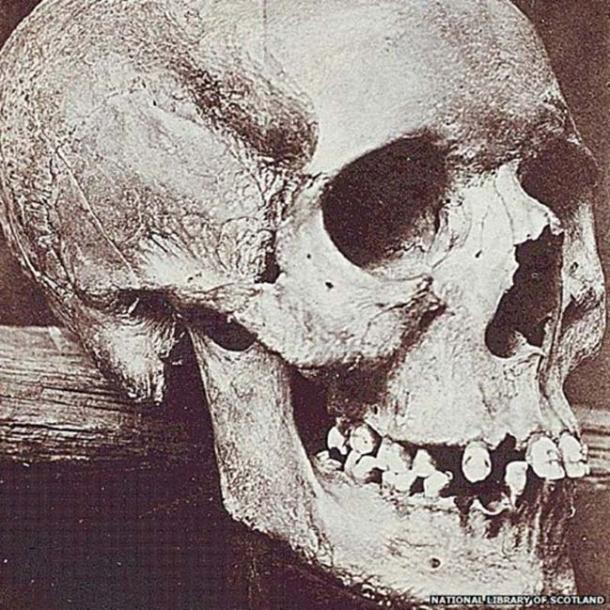 A photograph of the skull from the grave of Lilias Adie (National Library of Scotland)