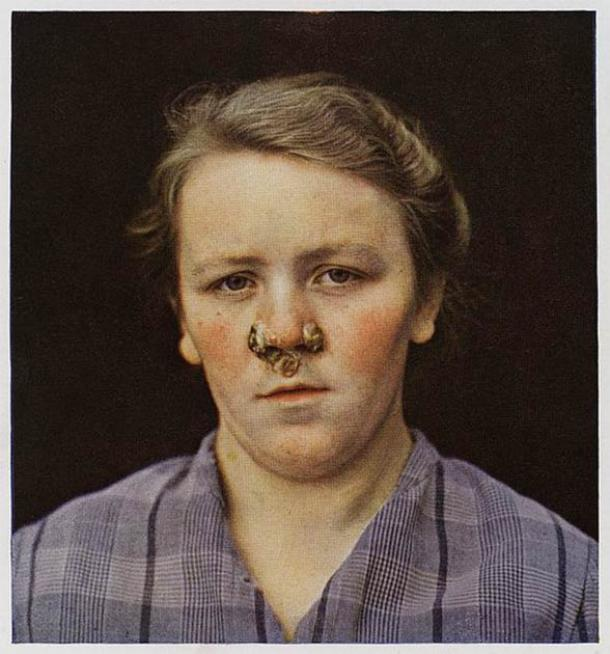 A photograph of a girl suffering from secondary Syphilis to the face with large papules around the nose. (CC BY 4.0)
