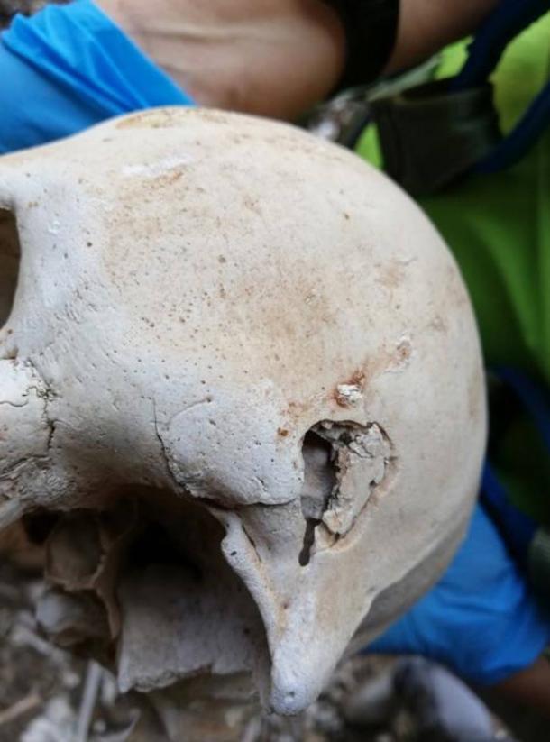 Remains of a pre-Hispanic Guanche person