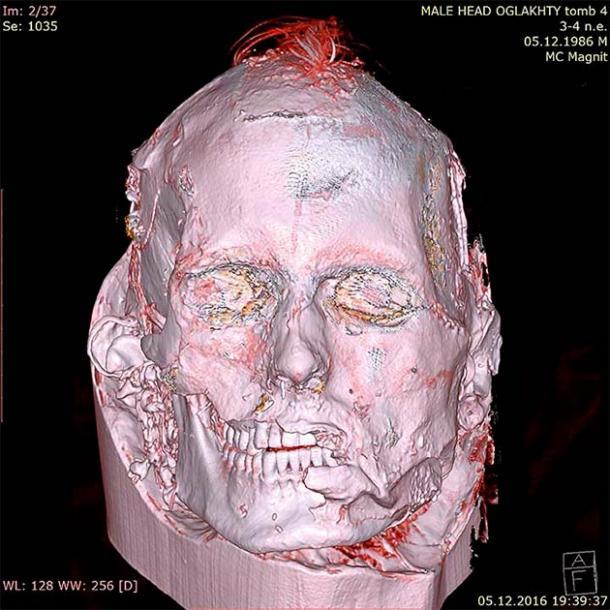 Los escaneos revelaron una larga cicatriz en el costado de su cara, desde el ojo izquierdo hasta la oreja. (© Museo Estatal del Hermitage / The Siberian Times)