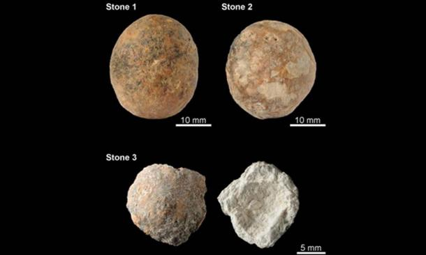 These prostate stones are about the size of walnuts and likely afflicted a man with excruciating pain 12,000 years ago.