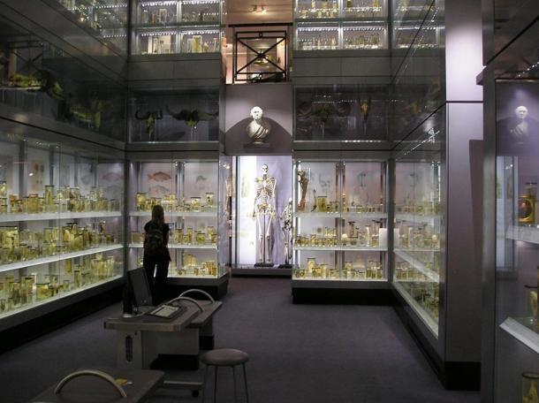 "he skeleton of Charles Byrne, ""The Irish Giant"" in London, 2007."