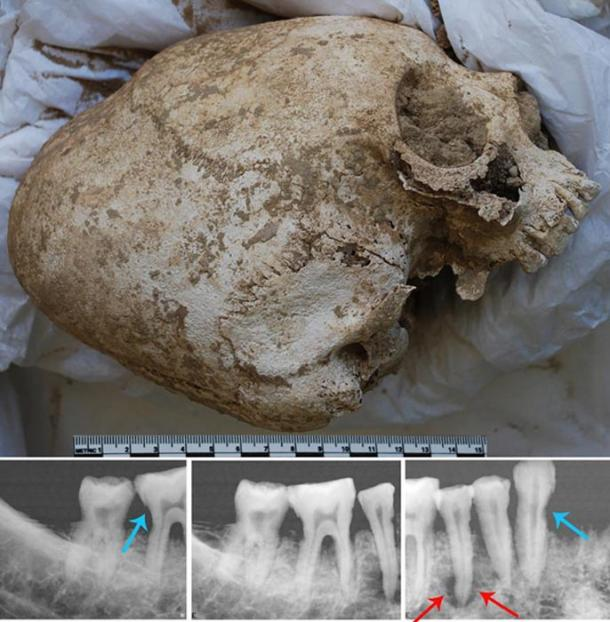 Artificially deformed skull; X-rays of right mandible with tooth decay and infected bone