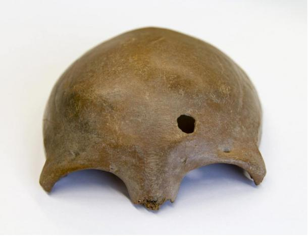 The skull of a woman killed by Caesar's army. The hole reveals lethal trauma probably caused by a missile.