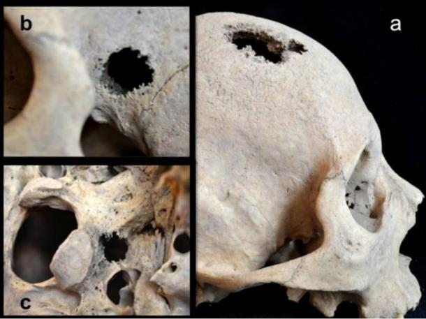 Lesions and holes in the skull of the Siberian man suggest people suffered cancer in the Early Bronze Age period