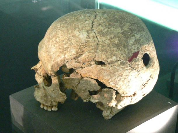 A skull exhibiting signs of trepanation from the Celtic museum in Hallein, Salzburg
