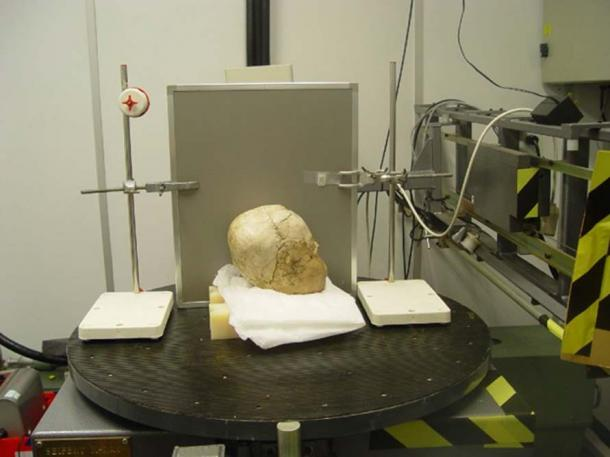 Side view of the skull undergoing analysis.