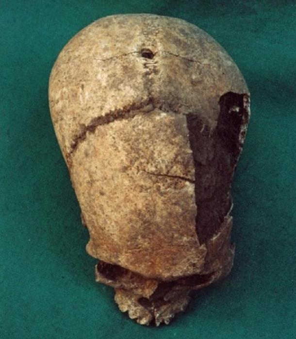 A skull with a hole drilled in the center, which is believed to have been hung from the front wall of the Temple