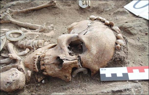 man's skeleton had a ring made of rare white jade over one eye socket.