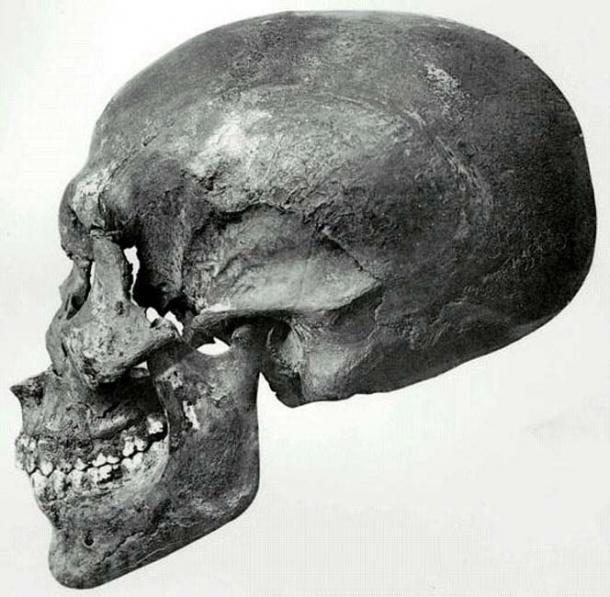 Profile view of the skull of Akhenaten recovered from KV55.