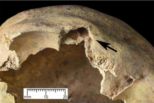 A square-shaped wound seen just over the right eye on the cranium, which was inflicted by a medieval longbow. (Oliver Creighton / University of Exeter)