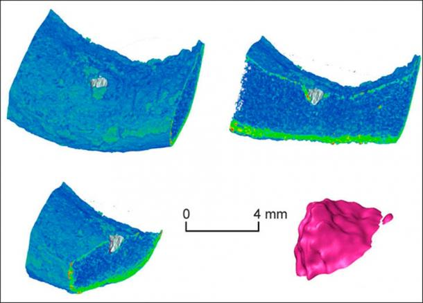 The bone was studied with X-ray computed tomography - a CT scan -  by Dr Konstantin Kuper, from the Budker Institute of Nuclear Physics in Novosibirsk, he also created a 3D model of the injury in the bone.