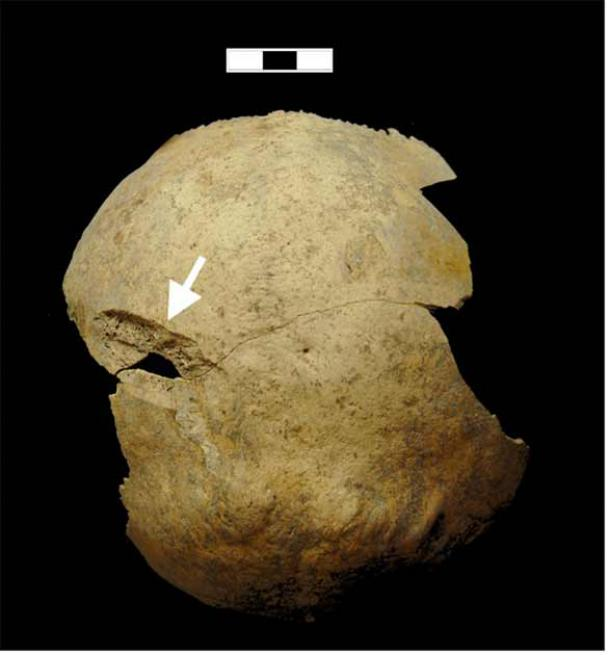 Sword wounds to the back of a crusaders head reveal the extreme violence that resulted in the two mass crusaders graves found in Sidon, Lebanon. (Richard Mikulski / PLOS One)