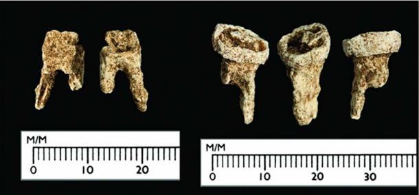 The Viking's teeth