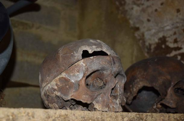 One of the skulls from the Charnel House in Rothwell which shows multiple fractures, as well as evidence of anatomization, likely from an autopsy