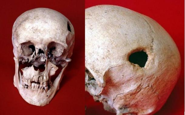 Medieval man may have had head drilled in an exorcism