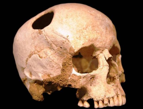 The trepanned skull of a medieval or Saxon man found in Italy.