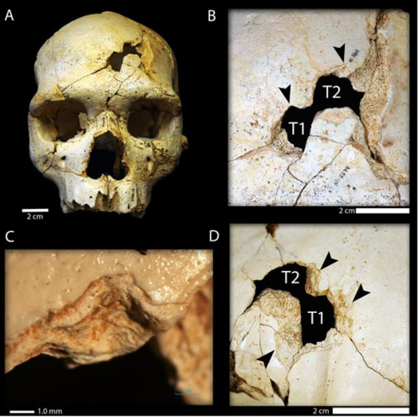 Researchers say the differing orientation of the two wounds to the cranium (T1 and T2) indicate there were two blows, which means they were inflicted rather than sustained in an accident.