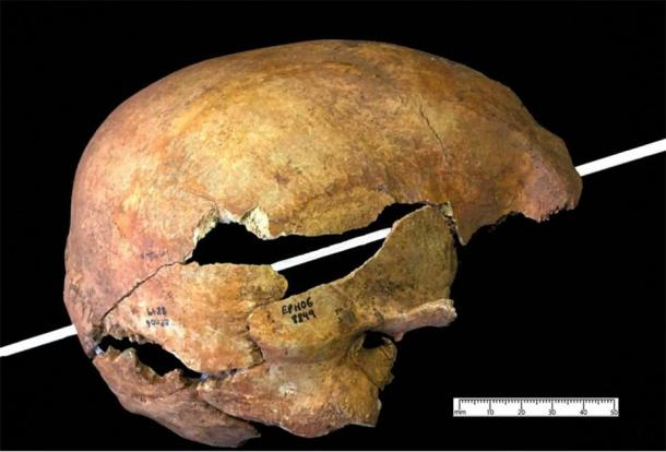 Exit wounds inflicted by a medieval longbow. The wound can be seen on the cranial remains used in the study. (Oliver Creighton / University of Exeter)