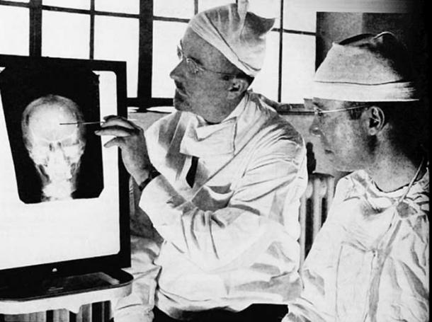 Walter Freeman (left) and James Watts study an x-ray prior to conducting 'psychosurgery'.