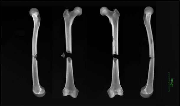 X-rays of butterfly fractures to both femora of an adult male buried in the Augustinian friary in medieval Cambridge. (Dr. Jenna Dittmar / University of Cambridge)