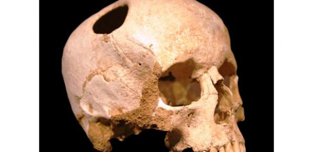Ancient Pazyryk nomads - Cranial Surgery
