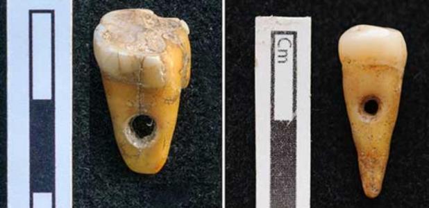The two drilled 8,500-year-old human teeth found at Çatalhöyük in Turkey. Source: Scott D. Haddow / University of Copenhagen