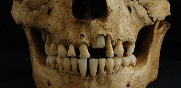 Skull of a child around the age of seven from a Roman cemetery studied by Killgrove and Montgomery.