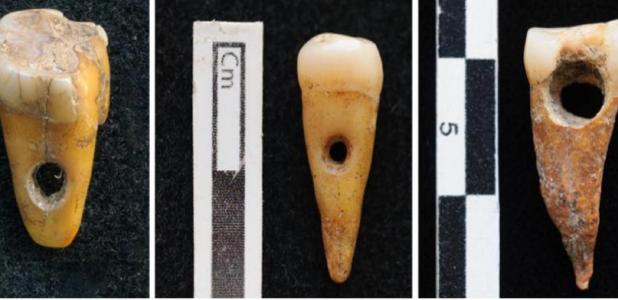 Evidence of human tooth jewelry has been found at Çatalhöyük, Turkey. Source: SCOTT HADDOW / UNIVERSITY OF COPENHAGEN