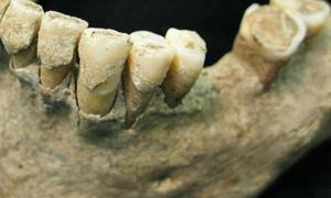 1,000-year-old tooth plaque