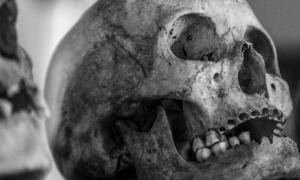 An ancient skull (public domain). Note: This image is representational only, and is not a photo of one of the skulls recently-discovered in Mayo, Ireland. Photos have not yet been released of the Neolithic Mayo bones.