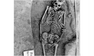 Researchers said the bones of this woman's twin fetuses are visible near her pelvis and thighs