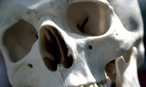 A human skull. Representational image only.