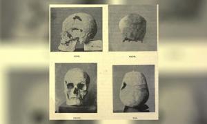 The skull of the Egyptian pharaoh Sa-Nakht, who may have had gigantism