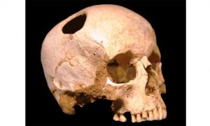 Ancient Pazyryk nomads - Cranial Surgery