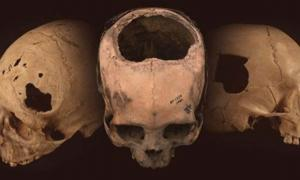 More ancient skulls bearing evidence of trepanation - a tell-tale hole surgically cut into the cranium - have been found in Peru than the combined number found in the rest of the world.