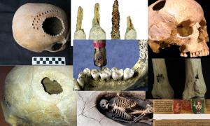 Eight Impressive but Terrifying Cases of Ancient Surgery