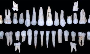 Individual XVIII teeth from la Sima de los Huesos, Atapuerca. Source: M. Modesto-Mata / CENIEH