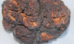 The 4000-year-old brain tissue found in Seyitömer Höyük, Turkey.