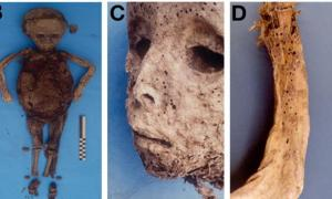 (B) the child's mummified body prior to the autopsy, (C) the pockmarked face and (D) this rash as evident on the arm.